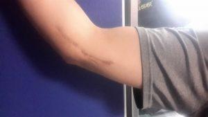 Tommy John surgery scar